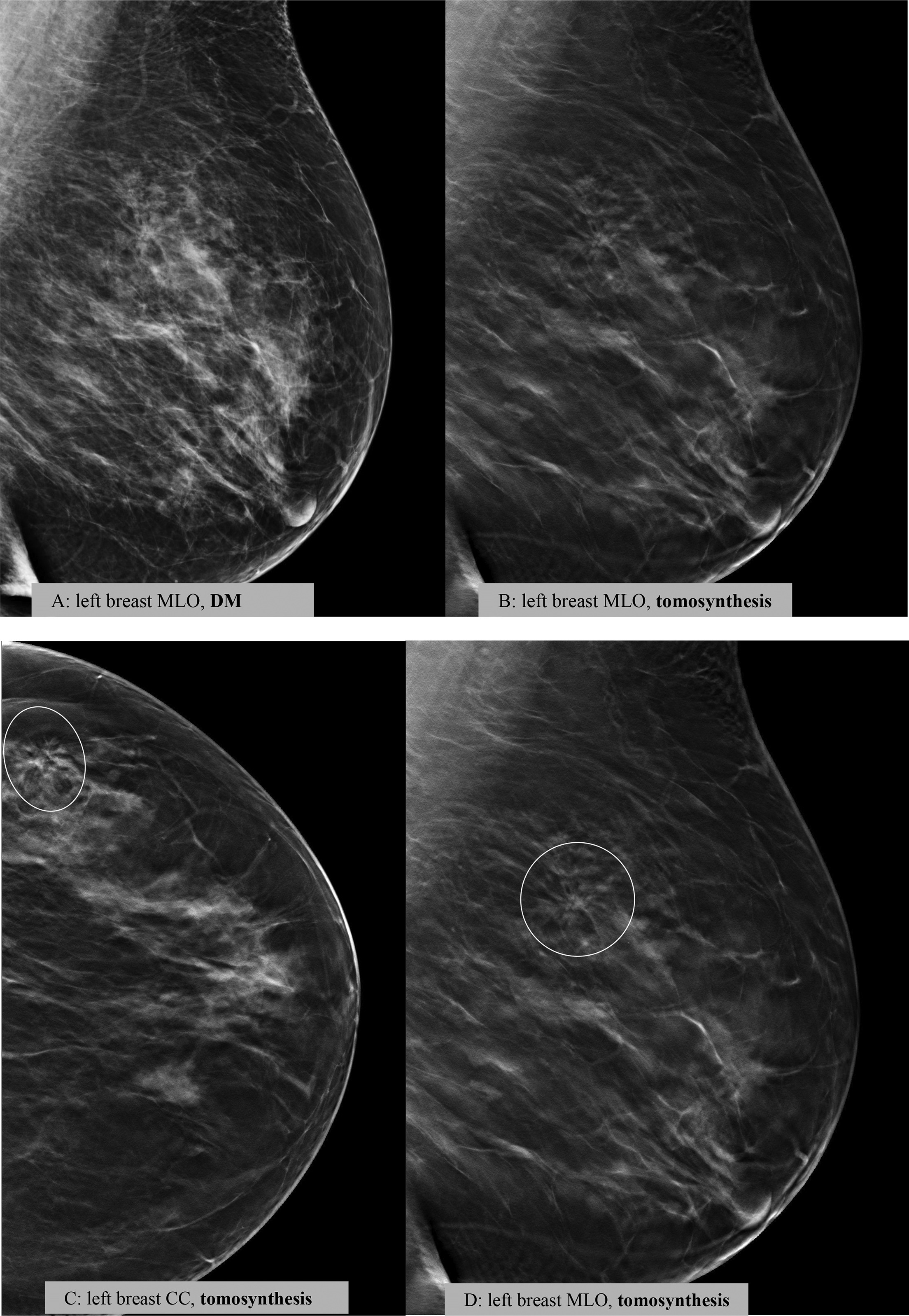scatter radiation digital tomosynthesis breast Keywords: digital breast tomosynthesis, x-ray scatter, monte carlo simulation, image quality, breast cancer, mammography introduction digital breast tomosynthesis (dbt) imaging 1 is emerging as a potentially feasible replacement or adjunct to standard mammography for the screening and diagnosis of breast cancer.